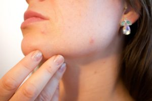 Skin problems such as acne, breakout, dry patches, blemishes, blackheads